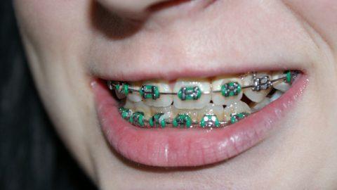 7 ข้อควรรู้ก่อนจัดฟัน สำหรับคนจัดฟันควรอ่าน